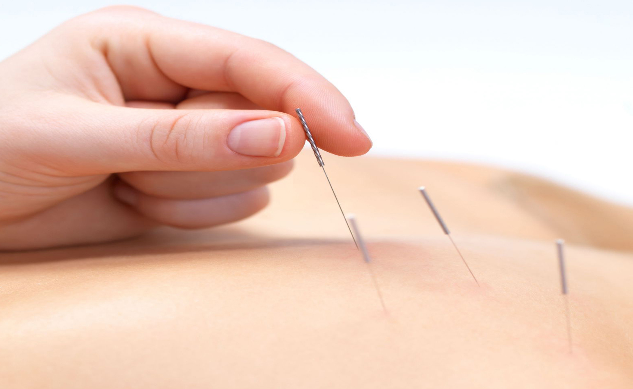 acupuncture as a good option to alternative healing Alternative medicine and your health on everything from fish oil supplements to acupuncture plan with alternative healthcare options.