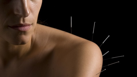 Acupuncture wallpapers high quality
