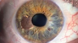 Iris Of The Eyeball Best Wallpaper