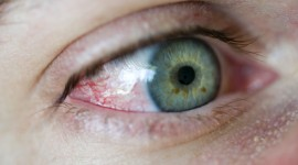 Iris Of The Eyeball Wallpaper High Definition