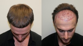 Hair Transplantation Best Wallpaper