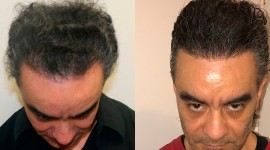 Hair Transplantation High Quality Wallpaper