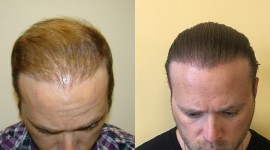 Hair Transplantation Wallpaper