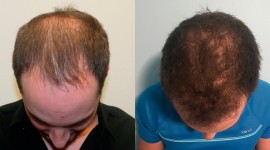 Hair Transplantation Wallpaper Background