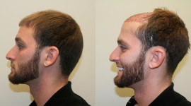 Hair Transplantation Wallpaper Download Free