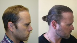 Hair Transplantation Wallpaper For Desktop