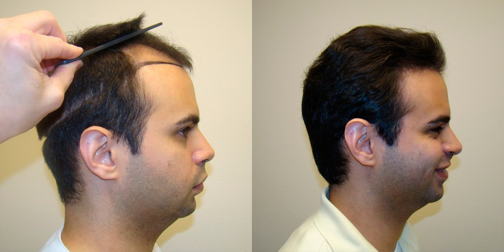 Hair Transplantation wallpapers HD