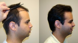 Hair Transplantation Wallpaper Free
