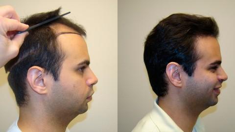 Hair Transplantation wallpapers high quality