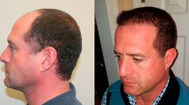 Hair Transplantation Wallpaper HD