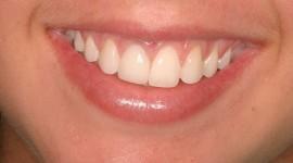 Dentist Wallpaper Full HD