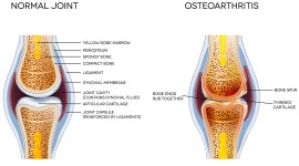 Osteochondrosis Wallpaper