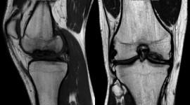 Osteochondrosis Wallpaper Free
