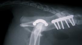 Osteochondrosis Wallpaper Full HD