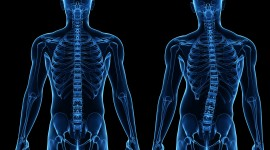 Scoliosis Wallpaper For Desktop