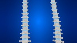 Scoliosis Wallpaper For IPhone Free