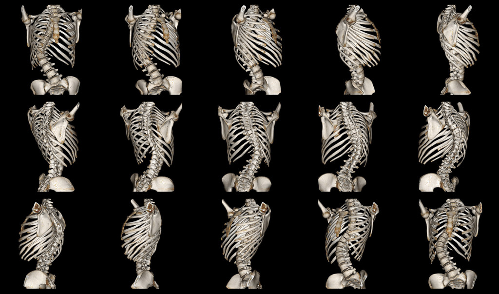 Scoliosis wallpapers HD
