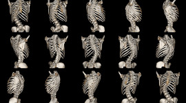 Scoliosis Wallpaper For PC
