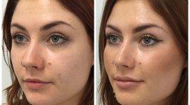 Lip Augmentation Best Wallpaper