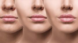 Lip Augmentation Desktop Wallpaper