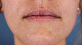 Lip Augmentation High Quality Wallpaper