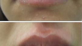 Lip Augmentation Wallpaper For IPhone