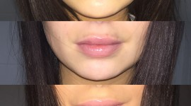 Lip Augmentation Wallpaper For IPhone Free