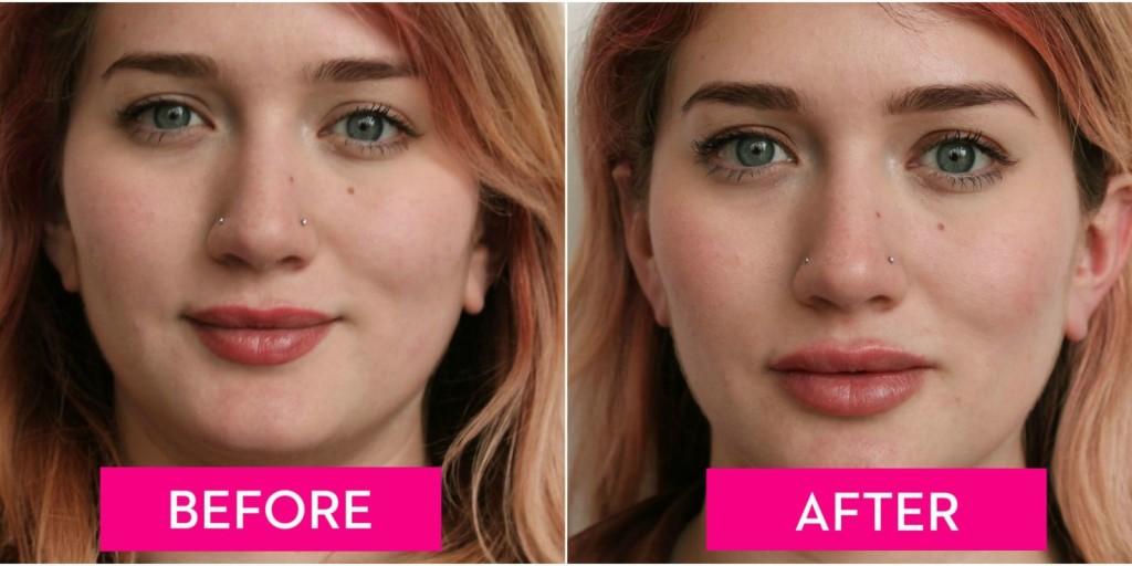 Lip Augmentation wallpapers HD