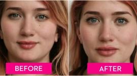Lip Augmentation Wallpaper Free