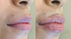 Lip Augmentation Wallpaper HD