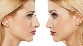 Rhinoplasty Desktop Wallpaper Free