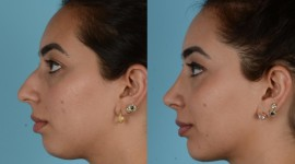 Rhinoplasty Desktop Wallpaper HD