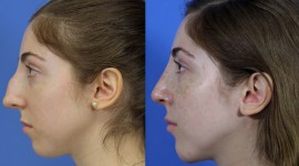 Rhinoplasty Wallpaper