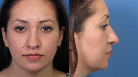 Rhinoplasty Wallpaper Background
