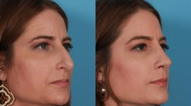 Rhinoplasty Wallpaper High Definition