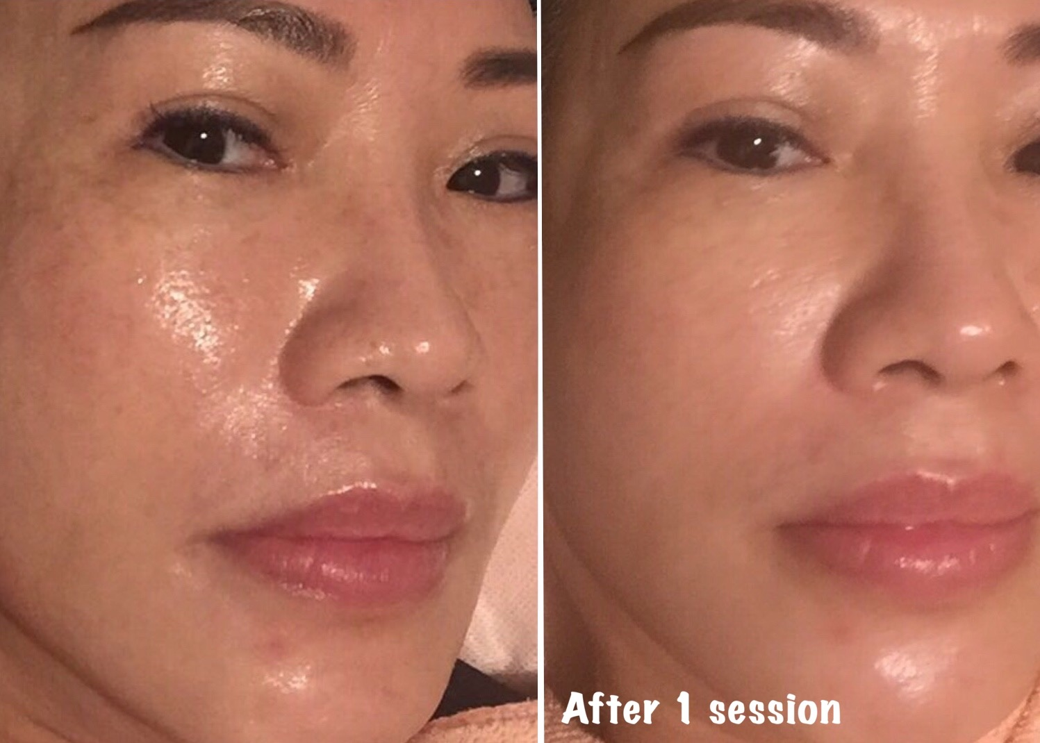 What Is Baby Glow Treatment